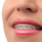 best dental clinic in Mumbai