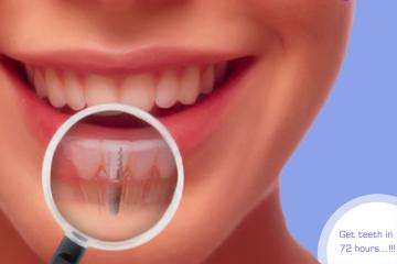 How to get Permanent Teeth in 3 days?