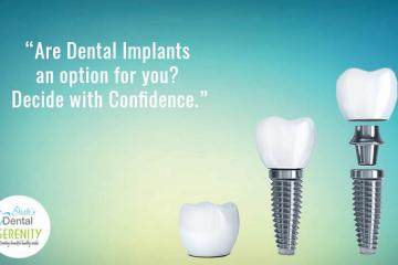 10 Things You Must Know About Dental Implants