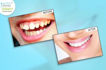 how-long-does-it-take-to-fix-crooked-teeth-in-adults