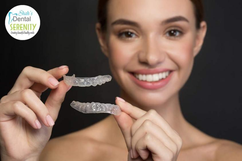 What are Clear Aligners and Reasons You Should be Getting It?